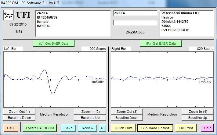 Jak vypadá výsledek vyšetření? Zpřístroje získáme graf, ze kterého vyhodnotíme výsledek. Obrázek ukazuje napravostrannou hluchotu.